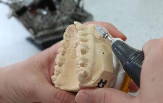 Zahnarztbesteck, Labor, Chirurgie, Zahnersatz, Kontrolle, Privatpraxis für Zahnheilkunde, Zahnärztin, Zahnarzt, Dentist, Dr. Anke Hambach, Issum, Niederrhein